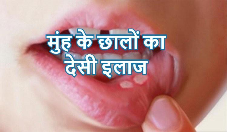 मुंह के छालों का देसी इलाज