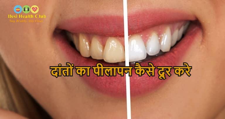 दांतों का पीलापन