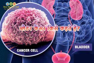 ब्लैडर कैंसर किसे कहते हैं?